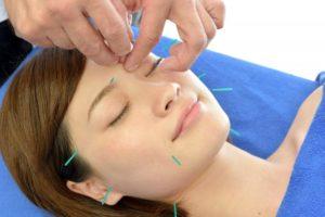 美容と鍼灸|守口市サンテ鍼灸整骨院